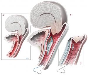 Хирургическое лечение переднего пролапса собственными тканями