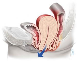 Опущение матки (апикальный пролапс)