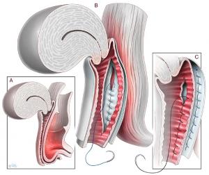 Хирургическое лечение заднего пролапса собственными тканями