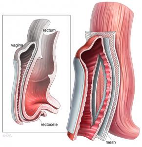 Хирургическое лечение пролапса с применением сетчатого импланта